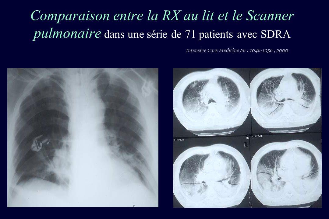 Comparaison entre la RX au lit et le Scanner pulmonaire dans une série de 71 patients avec SDRA Intensive Care Medicine 26 : 1046-1056, 2000