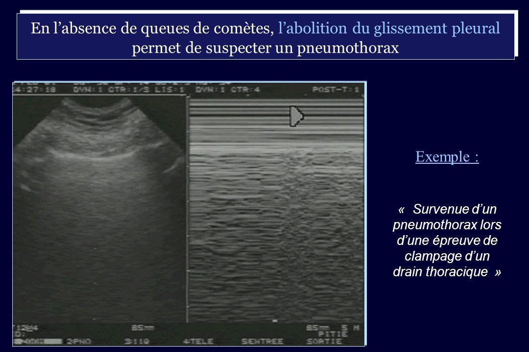 En labsence de queues de comètes, labolition du glissement pleural permet de suspecter un pneumothorax Exemple : « Survenue dun pneumothorax lors dune