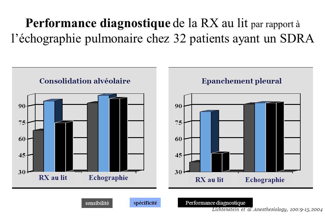 Performance diagnostique de la RX au lit par rapport à léchographie pulmonaire chez 32 patients ayant un SDRA sensibilité spécificitéPerformance diagn