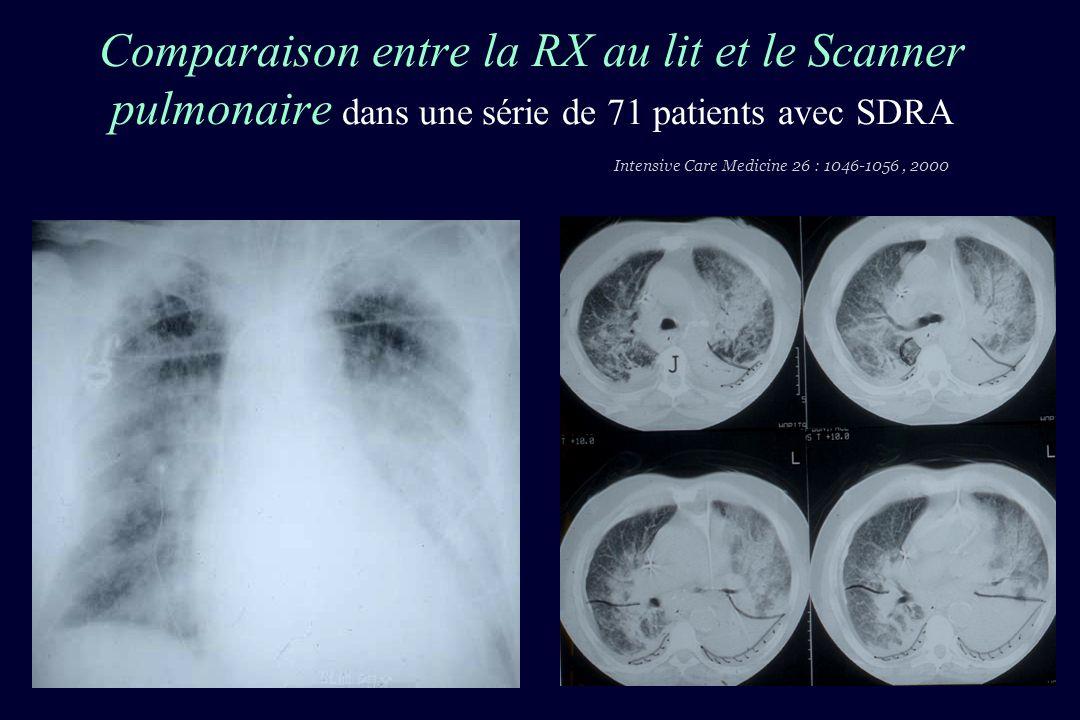 Visualisation de la crosse aortique au-delà dune consolidation du lobe supérieur droit par une sonde 4 MHz