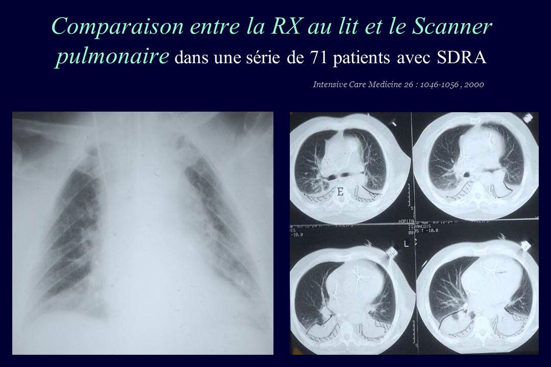 Le scanner thoracique spiralé reste la référence pour le diagnostic - Des atélectasies et consolidations - Des syndromes alvéolo-interstitiels: -épaississement des septa - verre dépoli - Des pneumotorax et épanchements pleuraux localisés ou non - Séquelles barotraumatiques - De la morphologie pulmonaire et de la distibutin de la perte daération - De surdistension pulmonaire