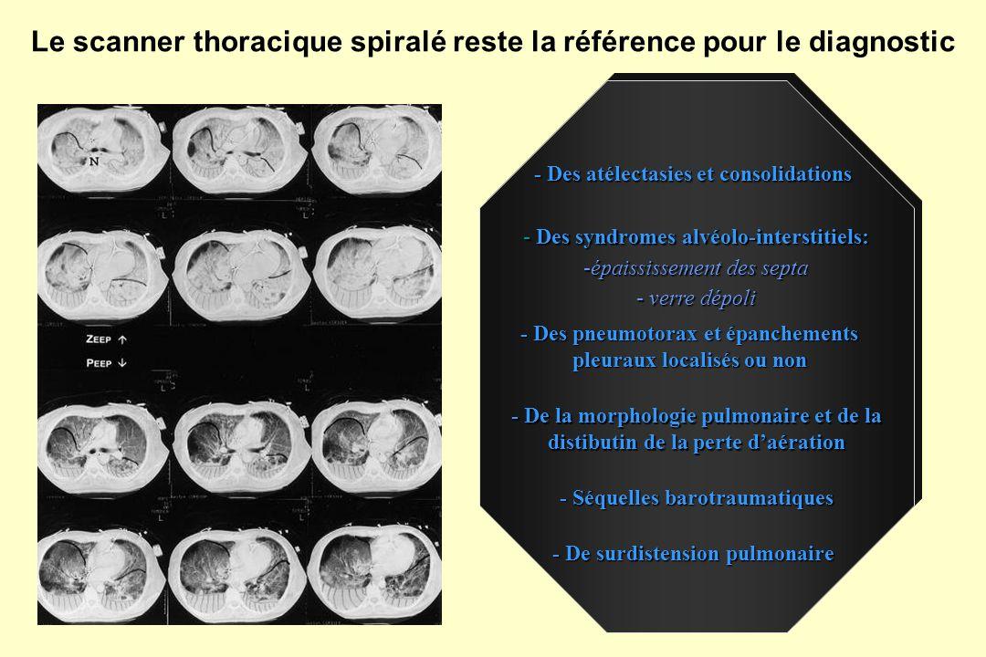 Structure tissulaire indiquant la présence dune consolidation alvéolaire en rapport avec un bronchogramme aérique Présence d images ponctiformes hyperéchogènes Epanchement pleural Lobe inférieur