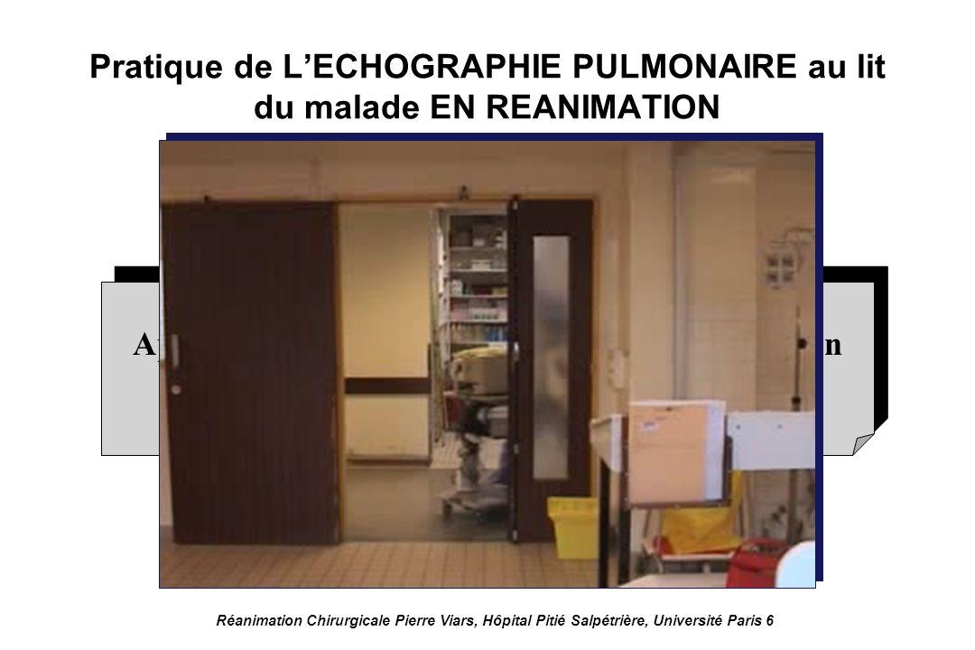 Sonde 5 MHz permettant lexamen de la périphérie du poumon Réanimation Chirurgicale Pierre Viars, Hôpital Pitié Salpétrière, Université Paris 6 Pratique de LECHOGRAPHIE PULMONAIRE au lit du malade en réanimation