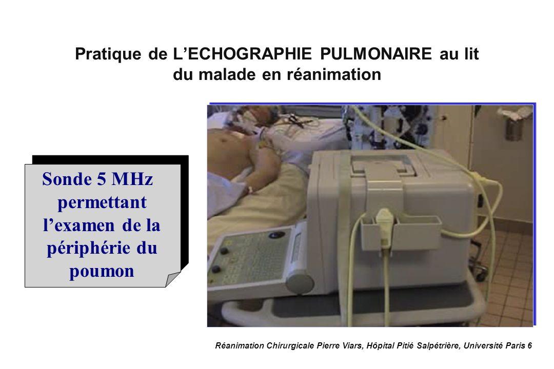 Réanimation Chirurgicale Pierre Viars, Hôpital Pitié Salpétrière, Université Paris 6 Un examen complet des 2 poumons prend environ 10 minutes Lexamen échographique pulmonaire au lit du malade Lexamen doit être complet, examiner les 2 côtés, en avant, latéralement et en arrière.