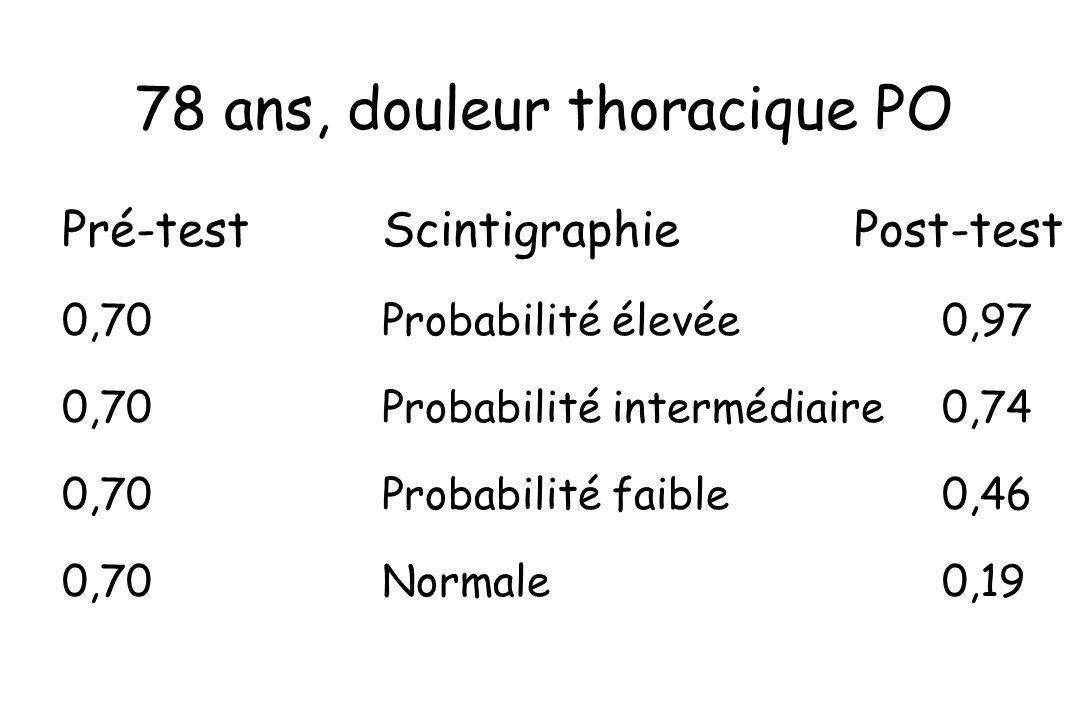 78 ans, douleur thoracique PO Pré-testScintigraphie Post-test 0,70Probabilité élevée0,97 0,70Probabilité intermédiaire0,74 0,70Probabilité faible0,46
