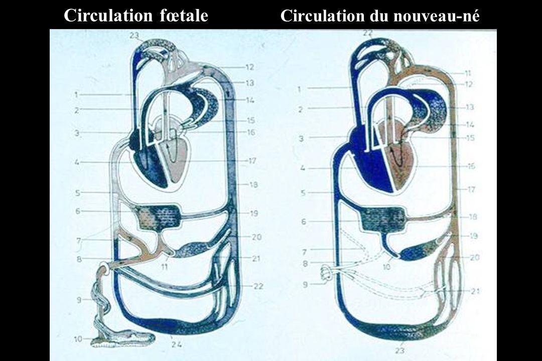 ADAPTATION CARDIO-CIRCULATOIRE A LA NAISSANCE Arrêt de la circulation ombilicale –Diminution des pressions droites (baisse du retour veineux) –Augmentation des pressions gauches (élévation des résistances systémiques) Expansion pulmonaire –Diminution des résistances artérielles pulmonaires –Augmentation du débit sanguin pulmonaire –Augmentation du retour veineux dans lOG = Inversion du régime de pression