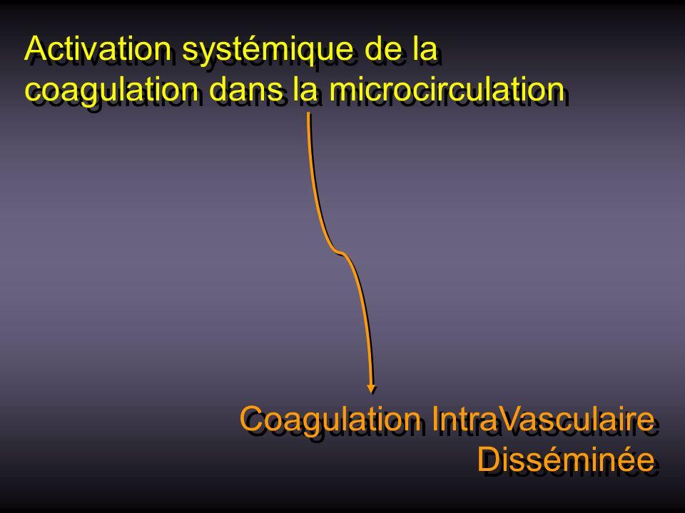 Activation systémique de la coagulation dans la microcirculation Coagulation IntraVasculaire Disséminée