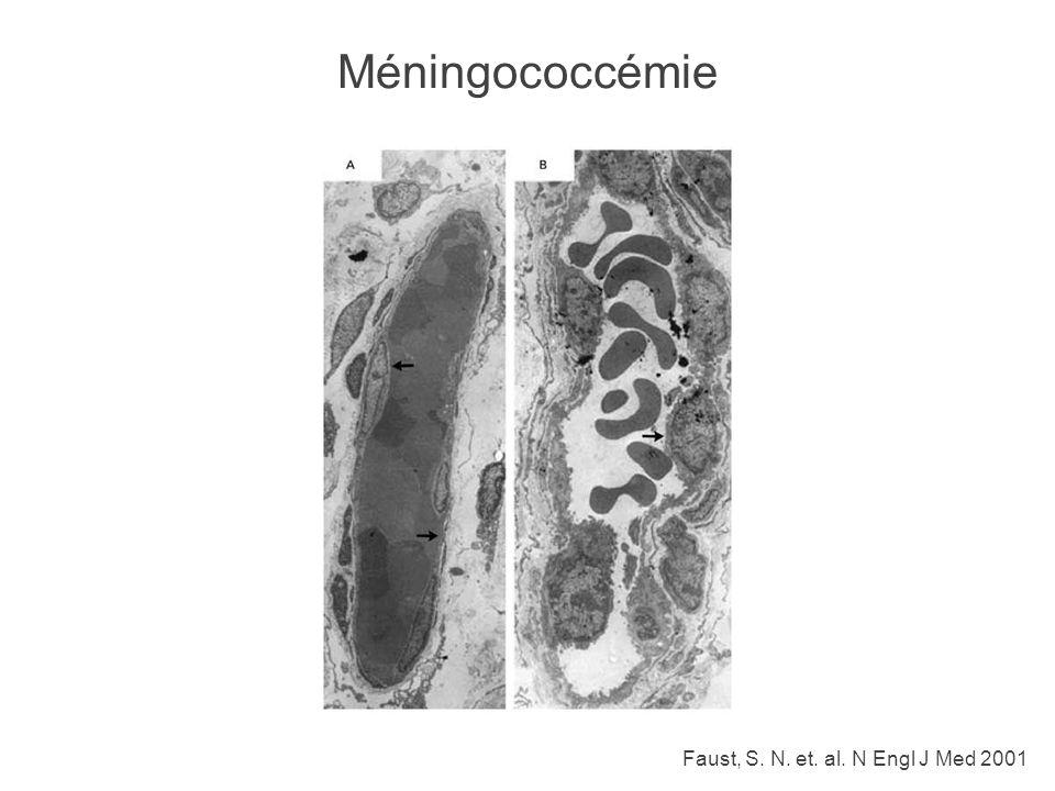 Faust, S. N. et. al. N Engl J Med 2001 Méningococcémie
