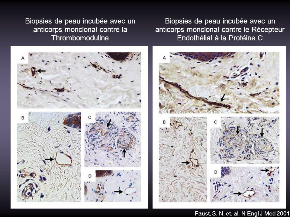 Faust, S. N. et. al. N Engl J Med 2001 Biopsies de peau incubée avec un anticorps monclonal contre la Thrombomoduline Biopsies de peau incubée avec un