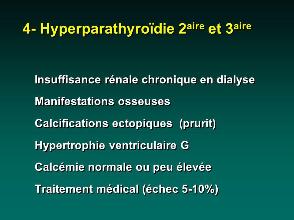 Insuffisance rénale chronique en dialyse Manifestations osseuses Calcifications ectopiques (prurit) Hypertrophie ventriculaire G Calcémie normale ou p
