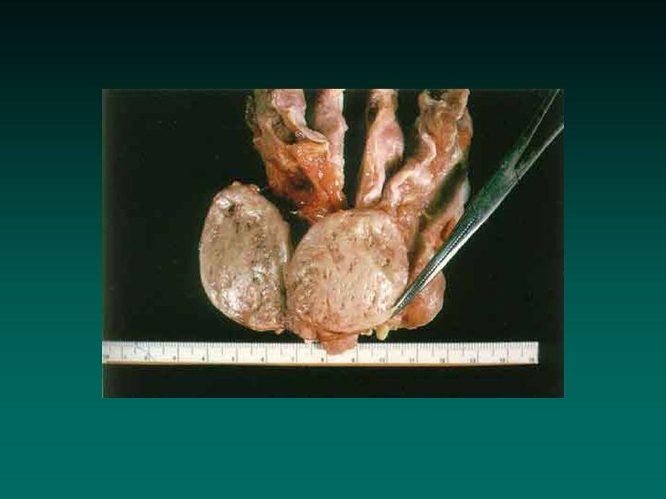 Hyperparathyroïdie Les points importants Urgence des hypercalcémies sévères Risque de dysrythmie cardiaque des hypercalcémies sévères Prise en charge des hyperparathyroïdies 2 aires Complications postopératoires de la chirurgie endocrinienne cervicale Urgence des hypercalcémies sévères Risque de dysrythmie cardiaque des hypercalcémies sévères Prise en charge des hyperparathyroïdies 2 aires Complications postopératoires de la chirurgie endocrinienne cervicale