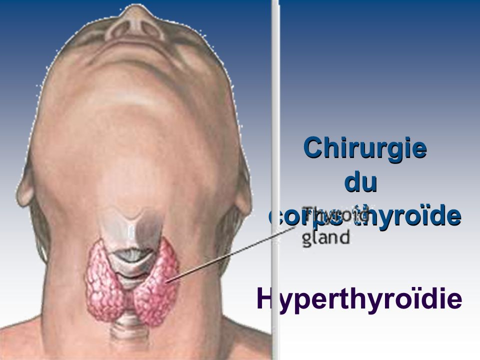 Esmolol: Intérêt (?) dans la prise en charge périopératoire des crises thyrotoxiques Titration facile du -blocage Sélectivité 1 Titration facile du -blocage Sélectivité 1 Vijayakumar, Anaesthesia 1989, 44: 406