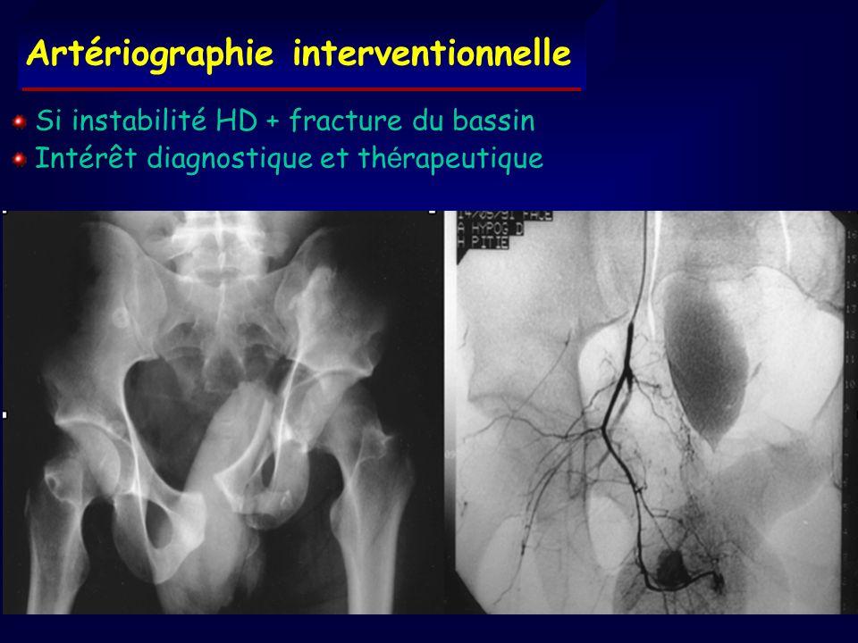 Artériographie interventionnelle Si instabilité HD + fracture du bassin Intérêt diagnostique et th é rapeutique