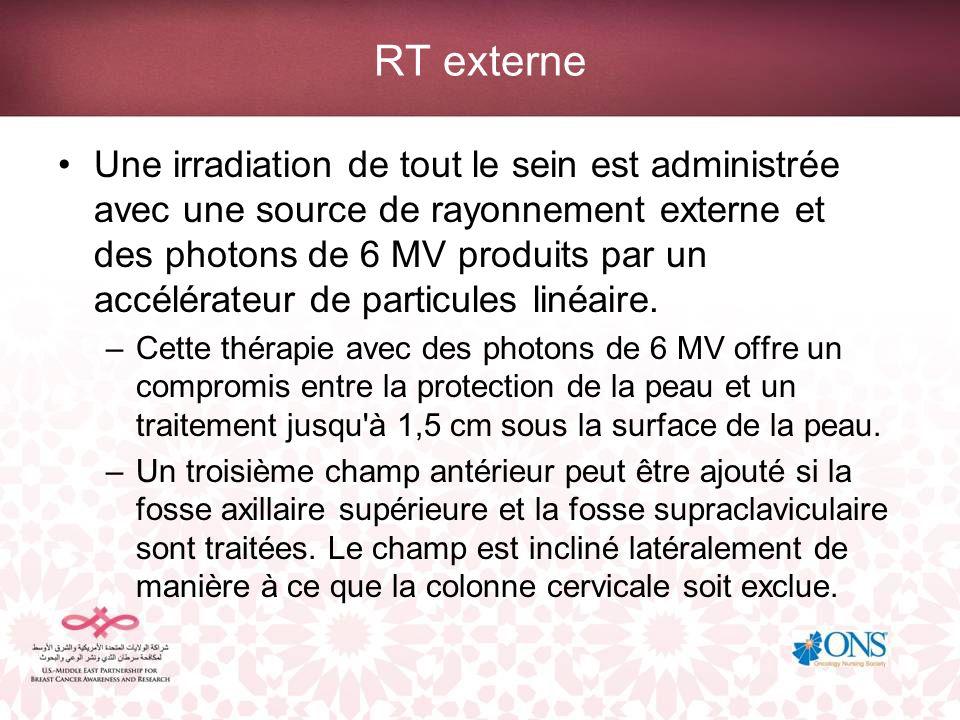 RT externe Une irradiation de tout le sein est administrée avec une source de rayonnement externe et des photons de 6 MV produits par un accélérateur de particules linéaire.