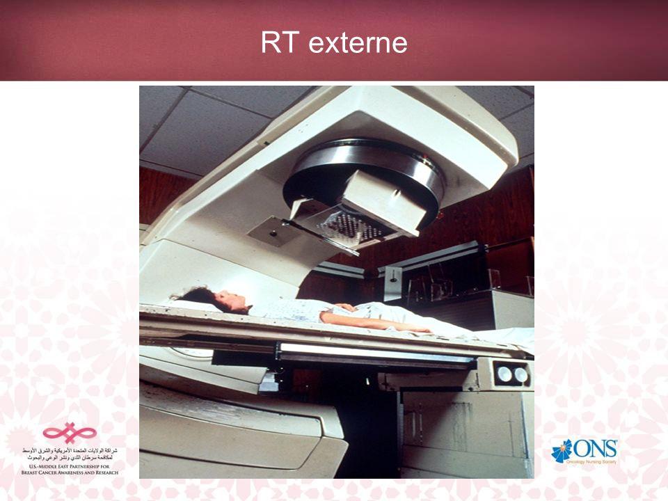 Planification du traitement La planification du traitement est également appelée simulation, lors de laquelle une série de radiographies sont effectuées afin de délimiter le sein et les ganglions lymphatiques.