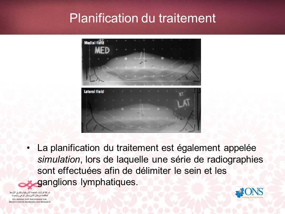 Planification du traitement par radiothérapie d intensité modulée La radiothérapie d intensité modulée utilise l imagerie tomographique pour définir les champs de traitement.