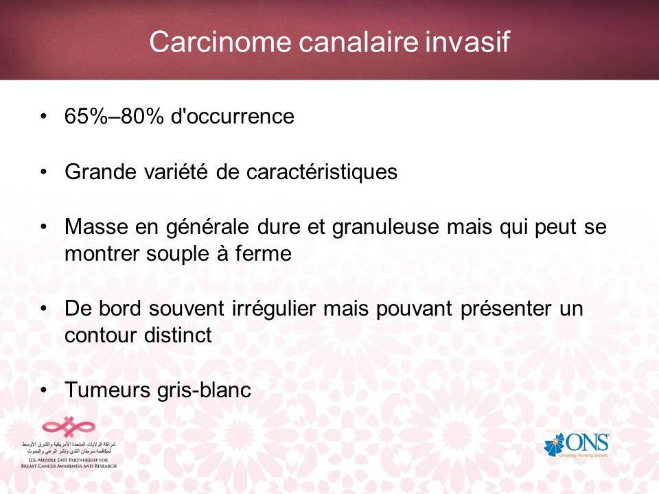 Carcinome canalaire invasif 65%–80% d'occurrence Grande variété de caractéristiques Masse en générale dure et granuleuse mais qui peut se montrer soup