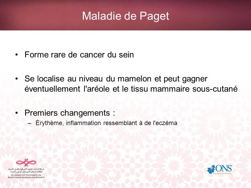Maladie de Paget Forme rare de cancer du sein Se localise au niveau du mamelon et peut gagner éventuellement l'aréole et le tissu mammaire sous-cutané