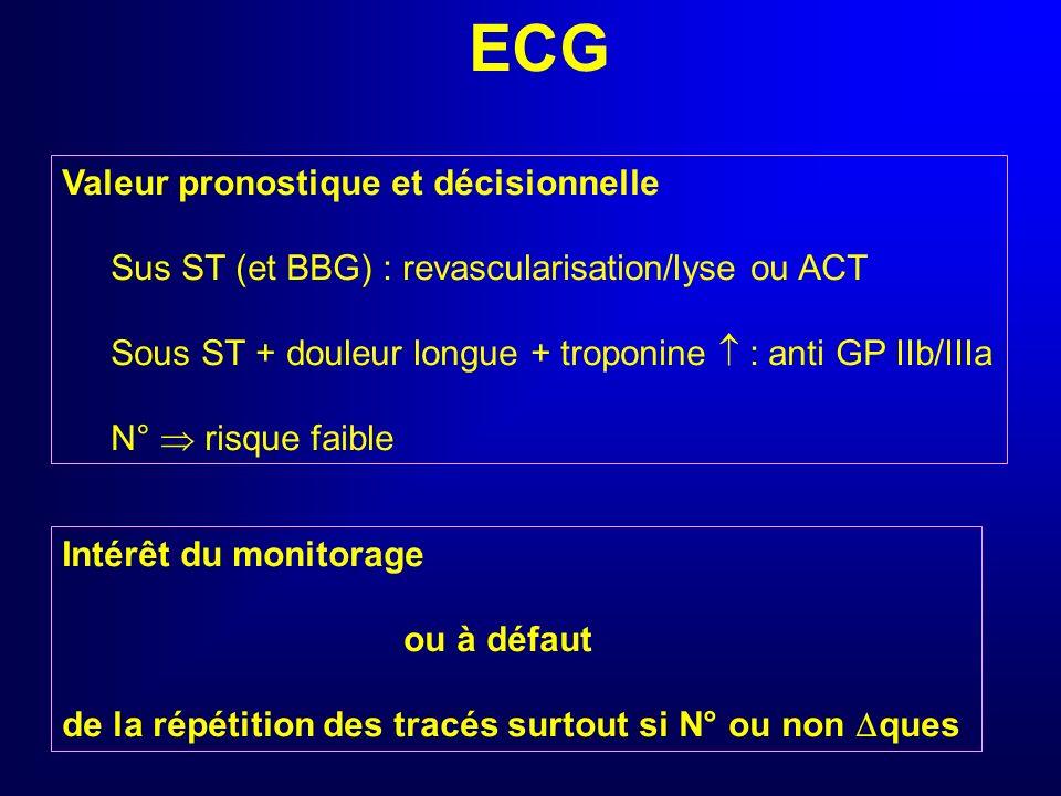 ECG Examen complémentaire de 1ère intention Valeur diagnostique dans linsuffisance coronarienne aiguë Sus ST récent VPP IDM : 90%, Se 30-40% Sous ST r