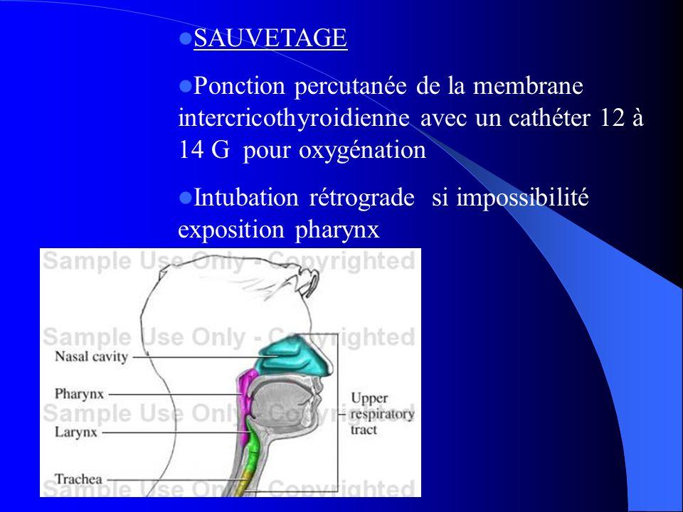 SAUVETAGE Ponction percutanée de la membrane intercricothyroidienne avec un cathéter 12 à 14 G pour oxygénation Intubation rétrograde si impossibilité