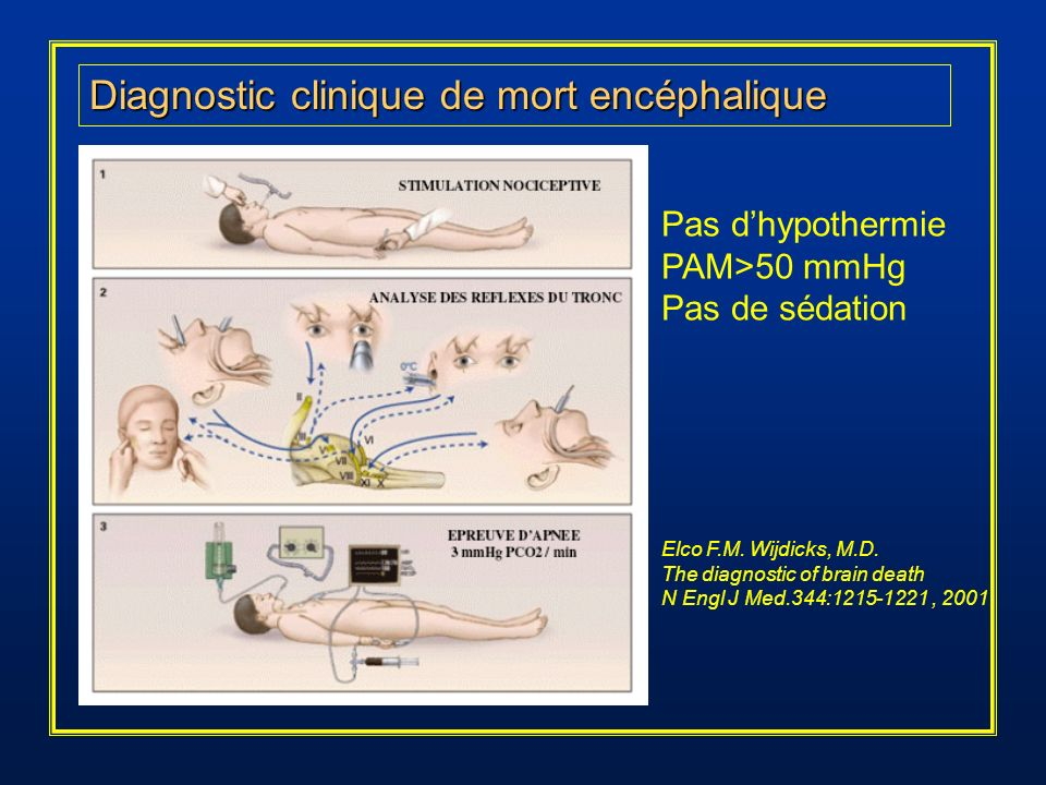 Diagnostic clinique de mort encéphalique Pas dhypothermie PAM>50 mmHg Pas de sédation Elco F.M. Wijdicks, M.D. The diagnostic of brain death N Engl J