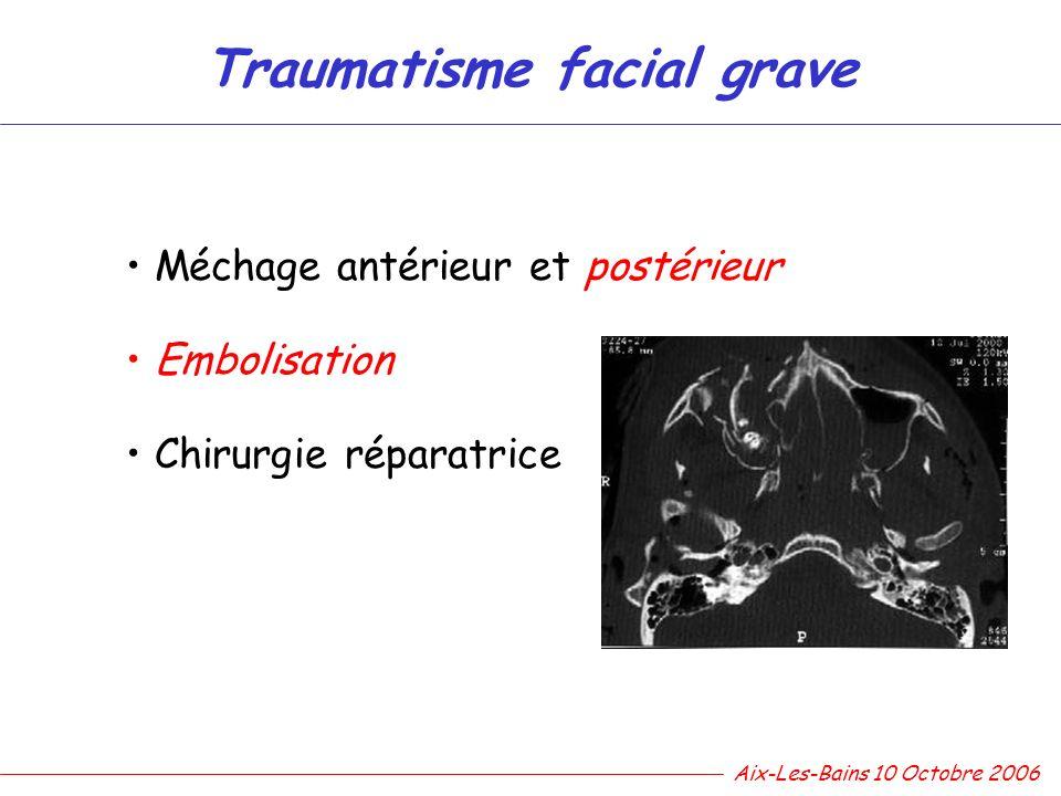 Traumatisme facial grave Méchage antérieur et postérieur Embolisation Chirurgie réparatrice Aix-Les-Bains 10 Octobre 2006