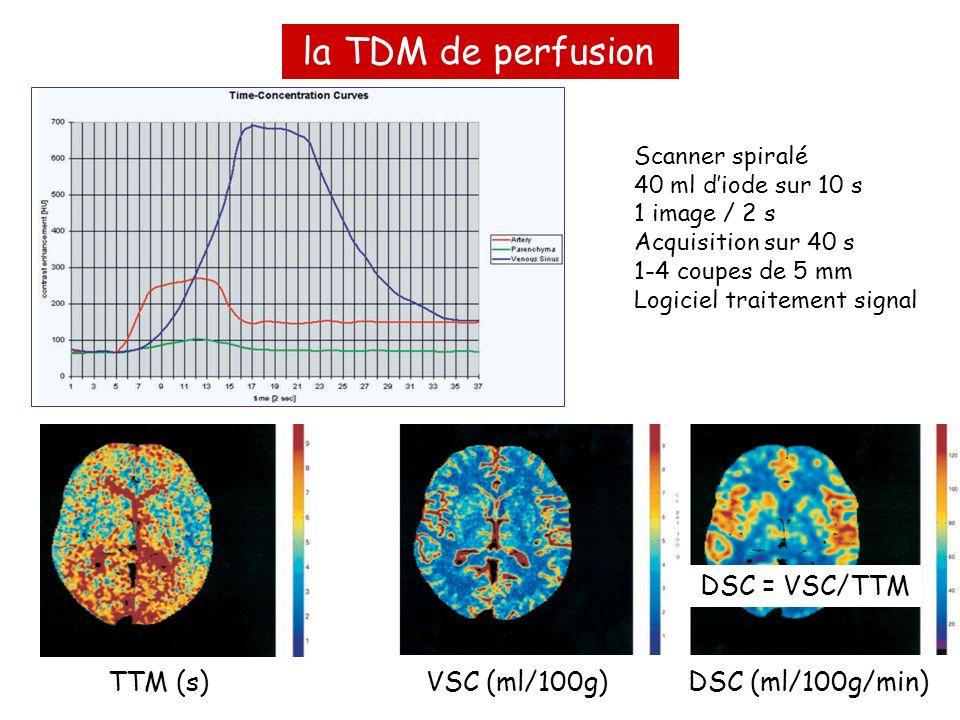 la TDM de perfusion TTM (s)VSC (ml/100g)DSC (ml/100g/min) Scanner spiralé 40 ml diode sur 10 s 1 image / 2 s Acquisition sur 40 s 1-4 coupes de 5 mm L