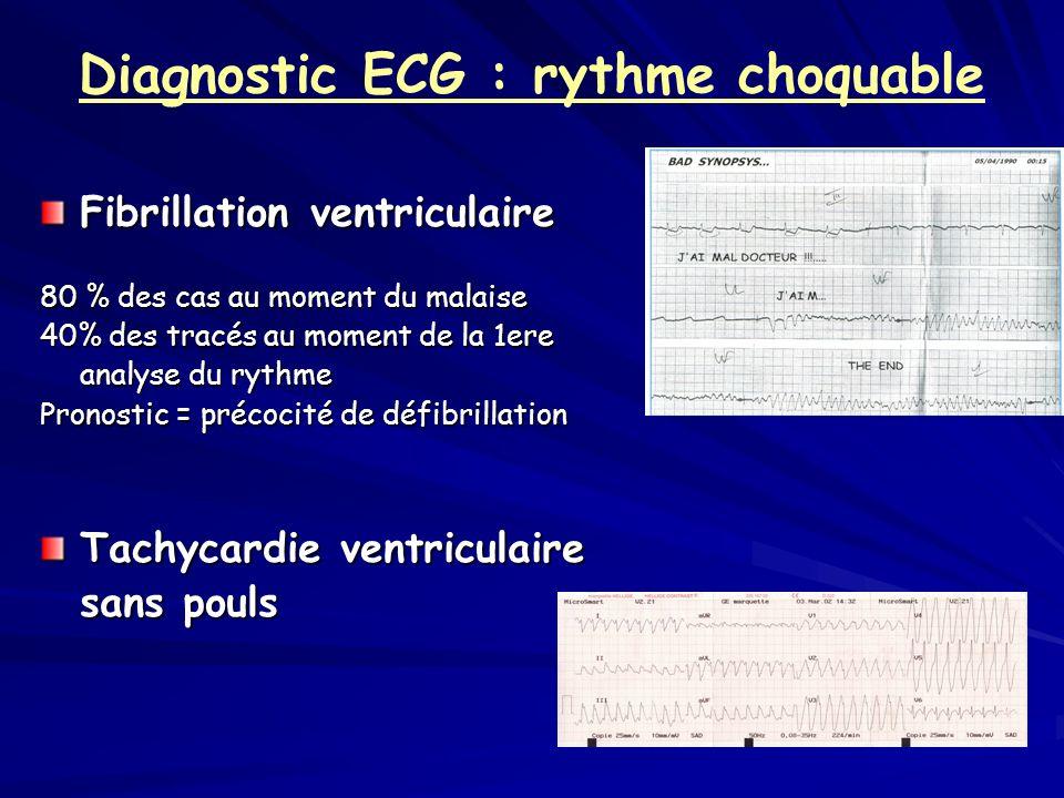 Diagnostic ECG : rythme choquable Fibrillation ventriculaire 80 % des cas au moment du malaise 40% des tracés au moment de la 1ere analyse du rythme P