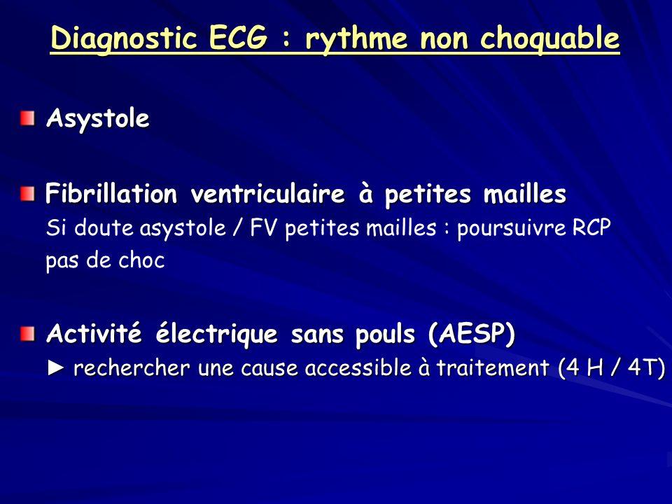 Diagnostic ECG : rythme non choquable Asystole Fibrillation ventriculaire à petites mailles Si doute asystole / FV petites mailles : poursuivre RCP pa