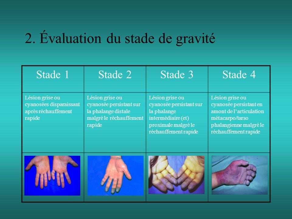 2. Évaluation du stade de gravité Stade 1Stade 2Stade 3Stade 4 Lésion grise ou cyanosées disparaissant après réchauffement rapide Lésion grise ou cyan