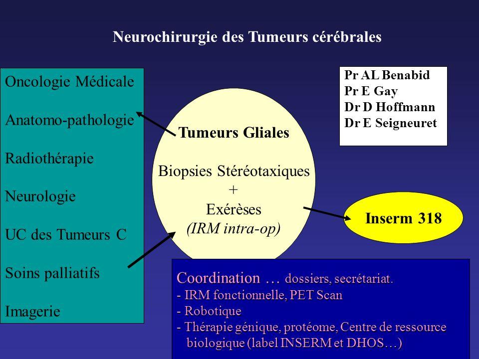 Neurochirurgie des Tumeurs cérébrales Tumeurs Gliales Biopsies Stéréotaxiques + Exérèses (IRM intra-op) Oncologie Médicale Anatomo-pathologie Radiothé