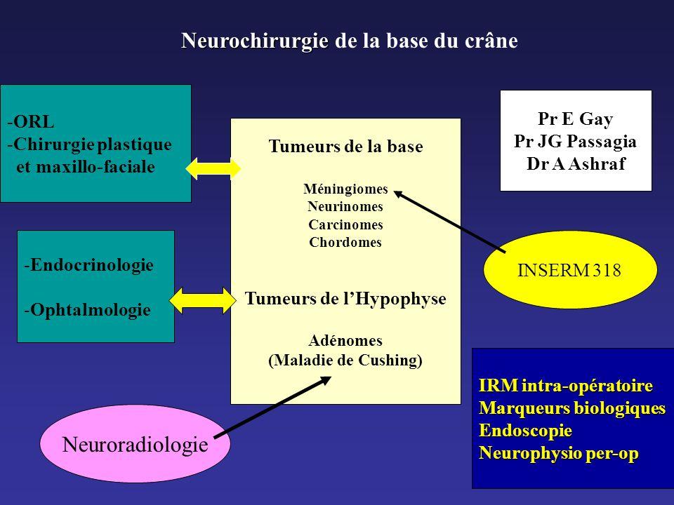 Neurochirurgie Neurochirurgie de la base du crâne Tumeurs de la base Méningiomes Neurinomes Carcinomes Chordomes Tumeurs de lHypophyse Adénomes (Malad