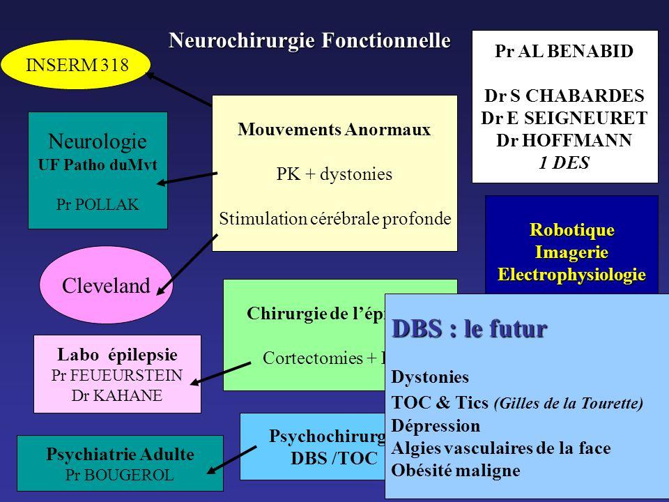 Neurochirurgie Fonctionnelle Mouvements Anormaux PK + dystonies Stimulation cérébrale profonde INSERM 318 Neurologie UF Patho duMvt Pr POLLAK Clevelan