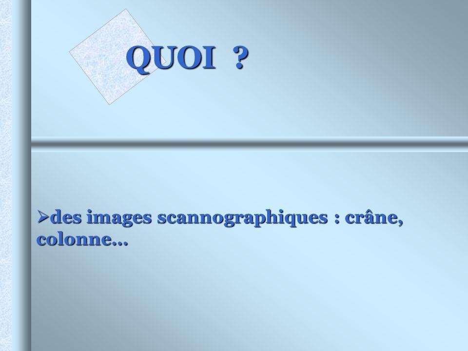 QUOI ? des images scannographiques : crâne, colonne… des images scannographiques : crâne, colonne…
