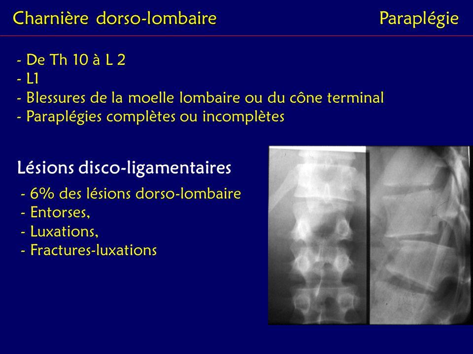 Charnière dorso-lombaire Paraplégie - De Th 10 à L 2 - L1 - Blessures de la moelle lombaire ou du cône terminal - Paraplégies complètes ou incomplètes
