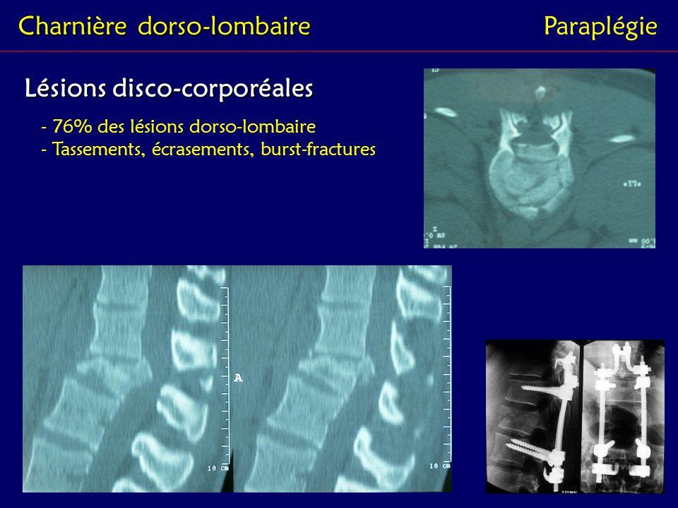 Lésions disco-corporéales Charnière dorso-lombaire Paraplégie - 76% des lésions dorso-lombaire - Tassements, écrasements, burst-fractures