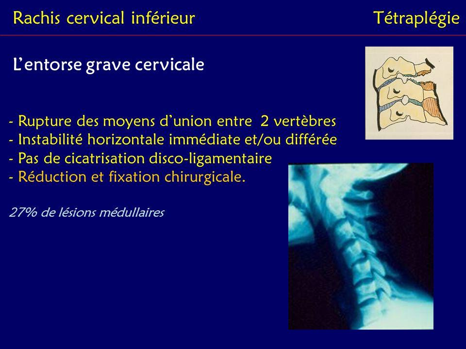 Rachis cervical inférieurTétraplégie Les luxations - Rupture des moyens dunion - Perte permanente des rapports normaux articulaires - Instabilité horizontale +++ - Menace neurologique - Réduction + fixation chirurgicale 50% de lésions médullaires (1/2 tétra complets)