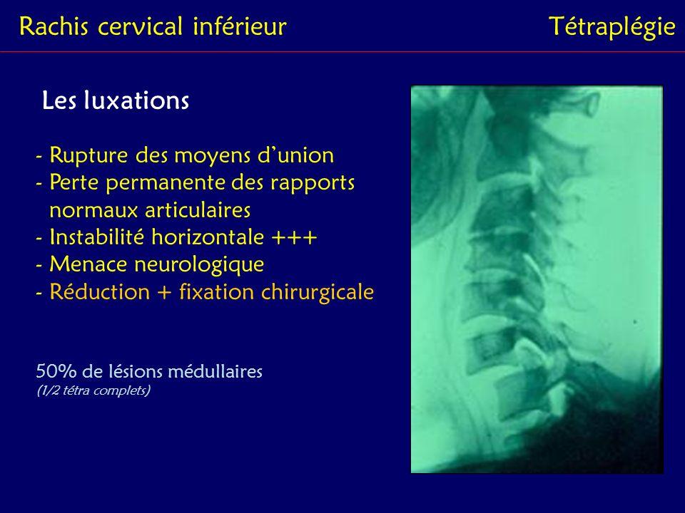 Rachis cervical inférieurTétraplégie Les fractures-luxations - Fracture articulaire unilatérale - Écrasement articulaire, engrené - FSMA - Réduction + fixation chirurgicale 24% de lésions médullaires