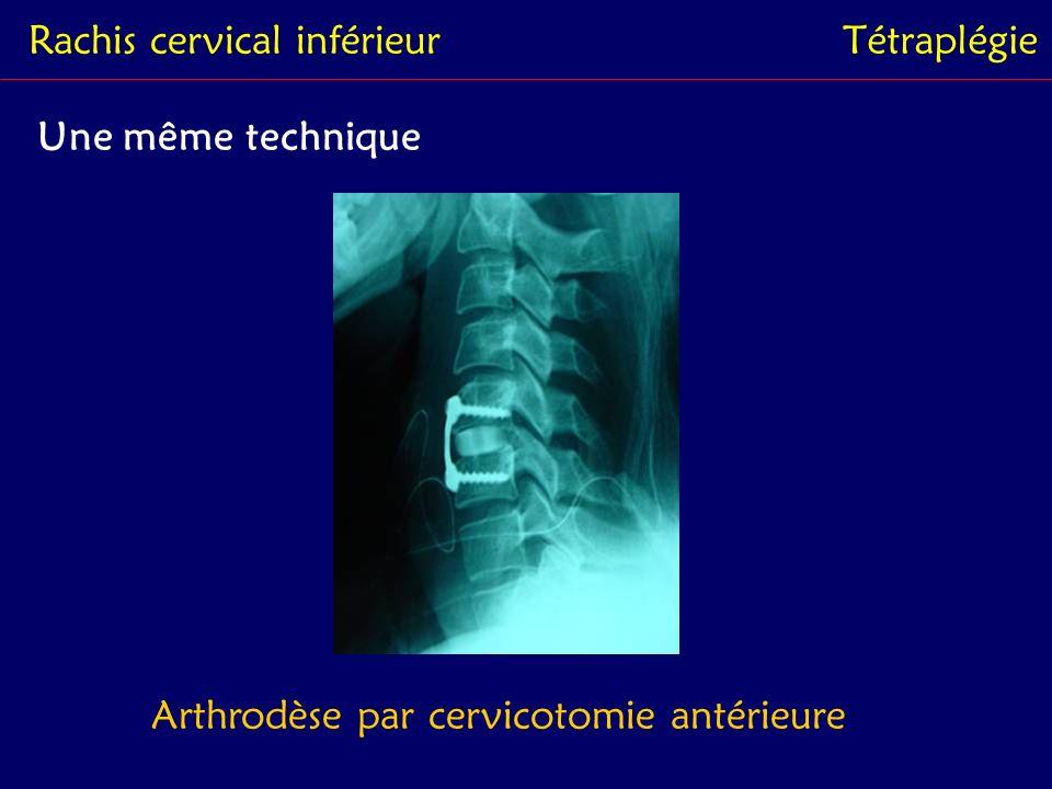 Rachis cervical inférieurTétraplégie Une même technique Arthrodèse par cervicotomie antérieure