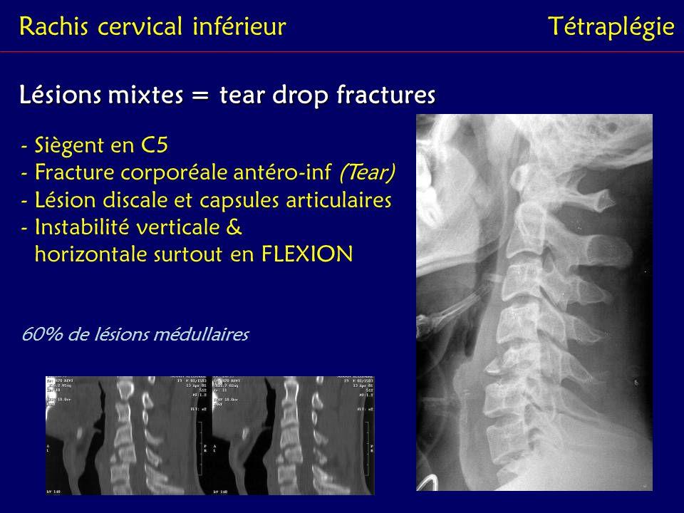 Rachis cervical inférieurTétraplégie Lésions mixtes = tear drop fractures - Siègent en C5 - Fracture corporéale antéro-inf (Tear) - Lésion discale et