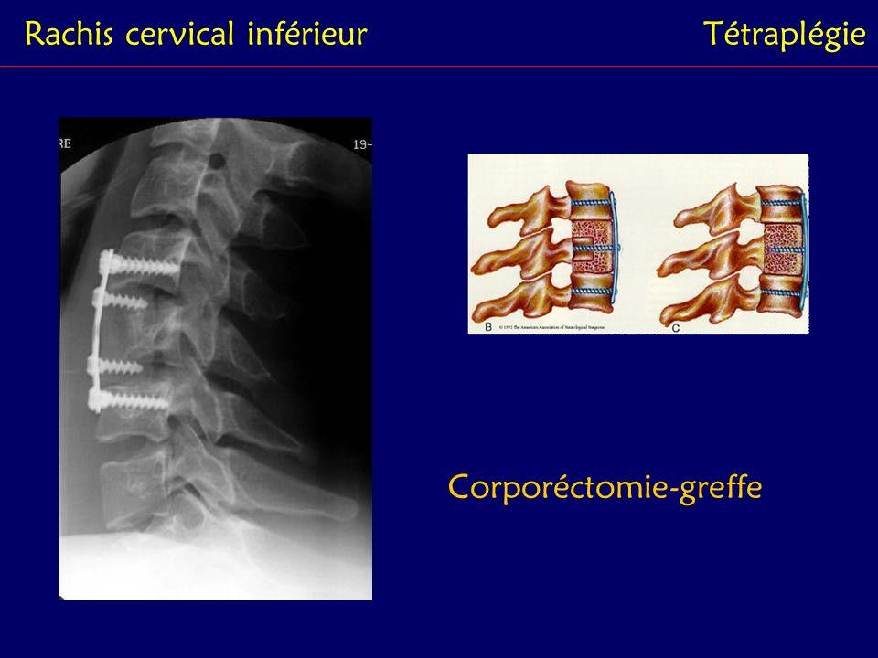 Rachis dorsalParaplégie - De Th1 à Th9 - Des lésions complexes - Fractures multi étagées - Paraplégies complètes définitives