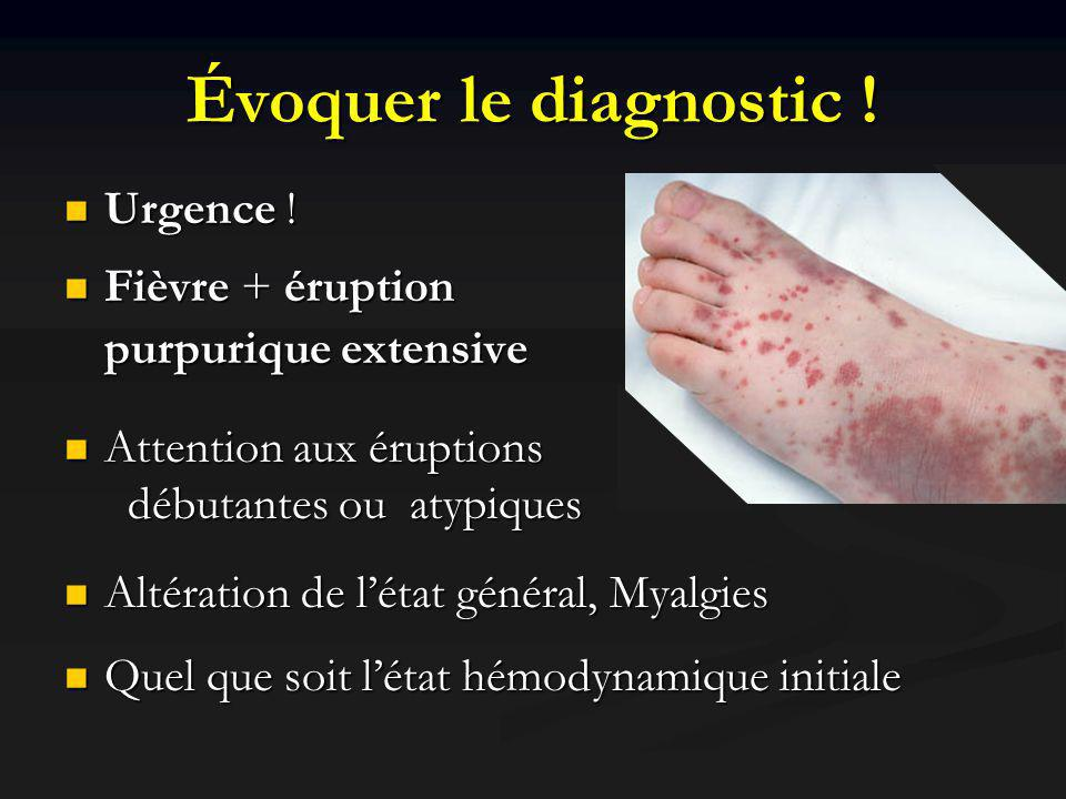 Évoquer le diagnostic ! Urgence ! Urgence ! Fièvre + éruption purpurique extensive Fièvre + éruption purpurique extensive Attention aux éruptions débu