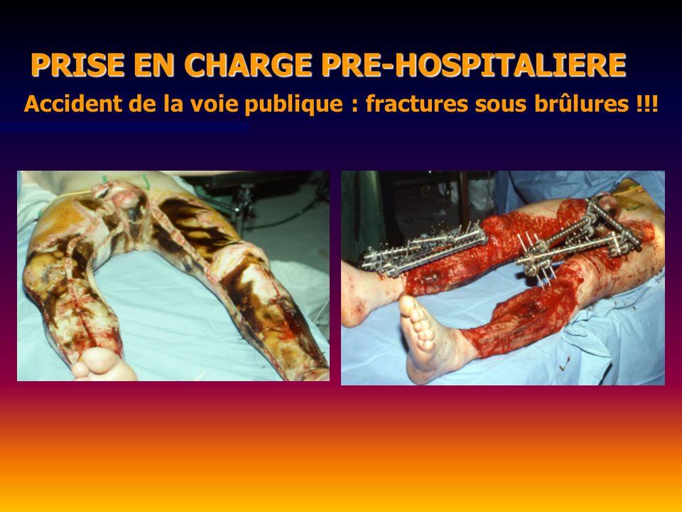Accident de la voie publique : fractures sous brûlures !!! PRISE EN CHARGE PRE-HOSPITALIERE