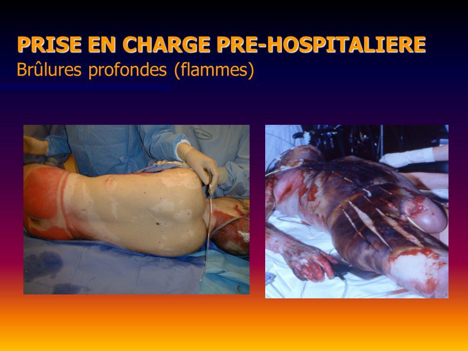 Brûlures profondes (flammes) PRISE EN CHARGE PRE-HOSPITALIERE