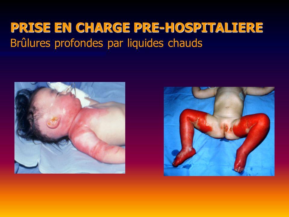 Brûlures profondes par liquides chauds PRISE EN CHARGE PRE-HOSPITALIERE