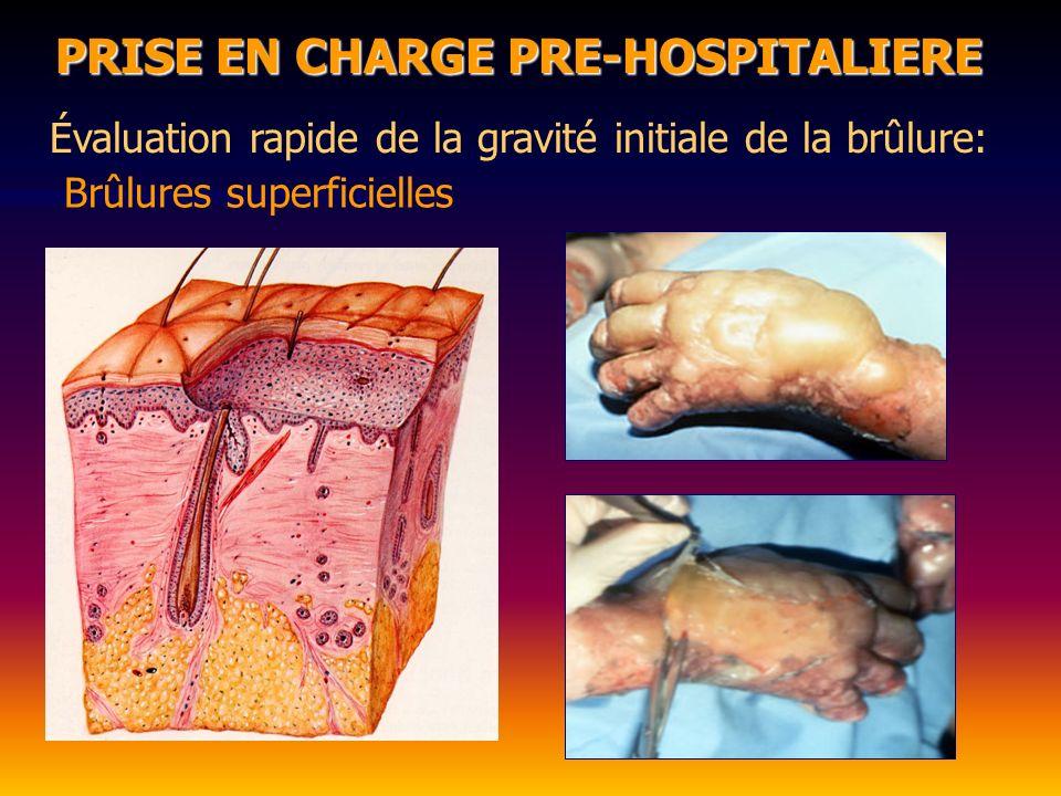 PRISE EN CHARGE PRE-HOSPITALIERE Évaluation rapide de la gravité initiale de la brûlure: Superficie : - règle de la « paume de main du patient » La surface de la paume de main du patient = 1% La surface de la paume de main du patient = 1%