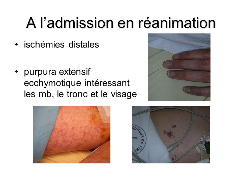 A ladmission en réanimation ischémies distales purpura extensif ecchymotique intéressant les mb, le tronc et le visage