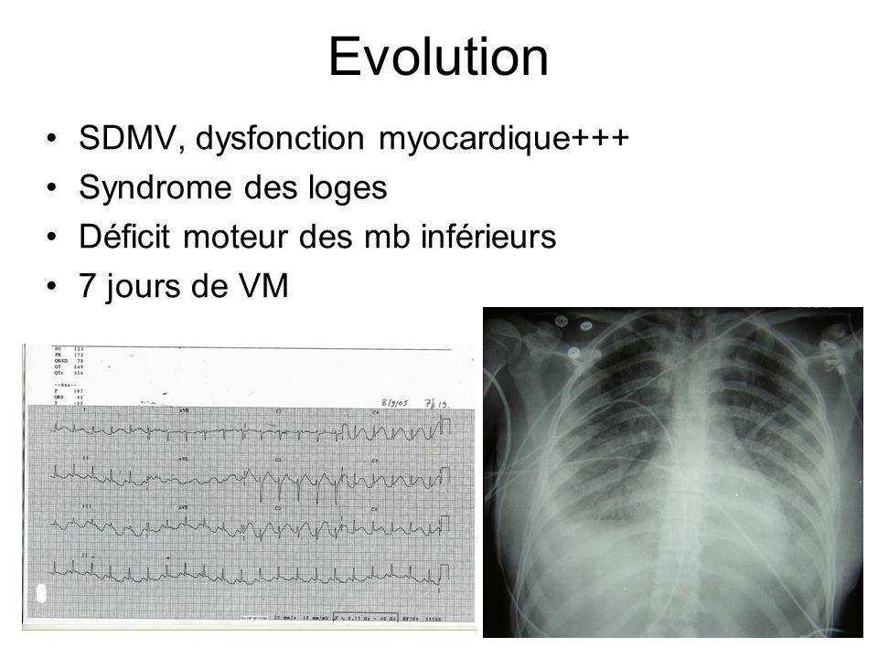 Evolution SDMV, dysfonction myocardique+++ Syndrome des loges Déficit moteur des mb inférieurs 7 jours de VM