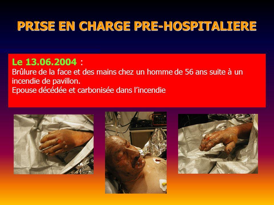 Le 13.06.2004 : Brûlure de la face et des mains chez un homme de 56 ans suite à un incendie de pavillon. Epouse décédée et carbonisée dans lincendie