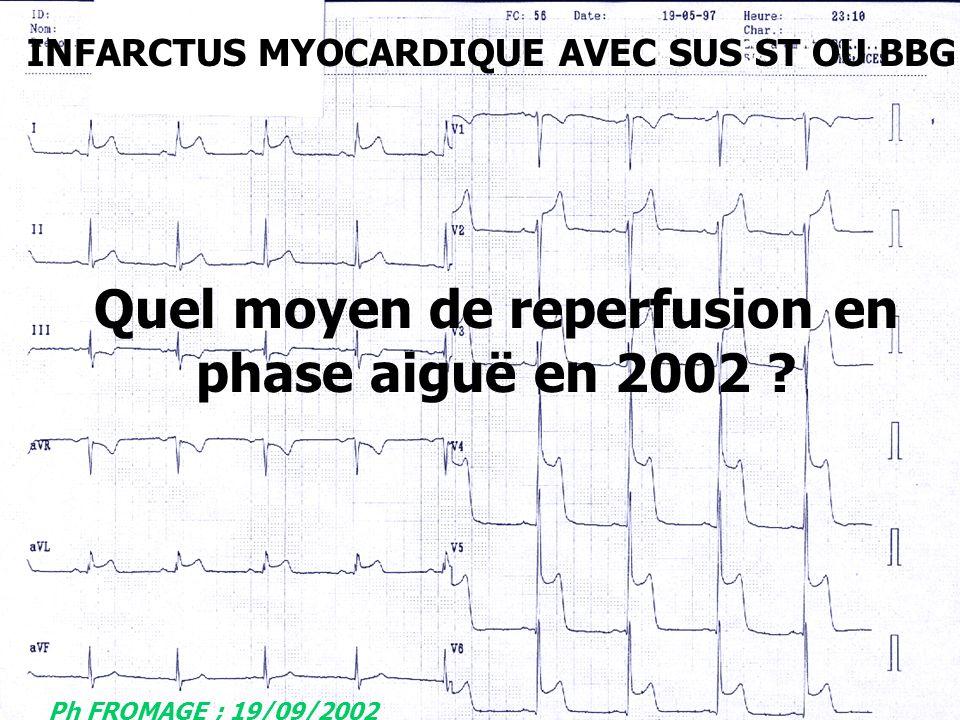 INFARCTUS MYOCARDIQUE AVEC SUS ST OU BBG Quel moyen de reperfusion en phase aiguë en 2002 ? Ph FROMAGE ; 19/09/2002